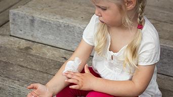 Girl Applying Eczema Cream